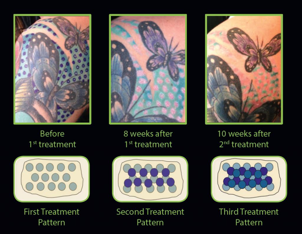 Tattoo Removal Treatment Patterns